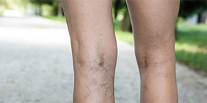 Legs with poor circulation